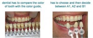 Die herkömmliche Methode mittels Farbabgleich